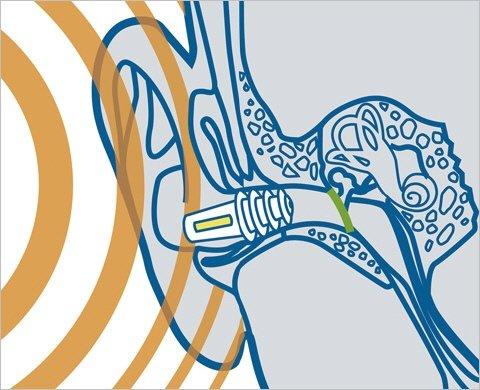 So wirken die Sanohra fly Ohrstöpsel © Sanohra