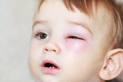 So ein Stich tut weh - ist aber nicht lebensgefährlich © Miroslav Beneda - Fotolia.com